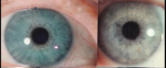 Blue eye iris comparison